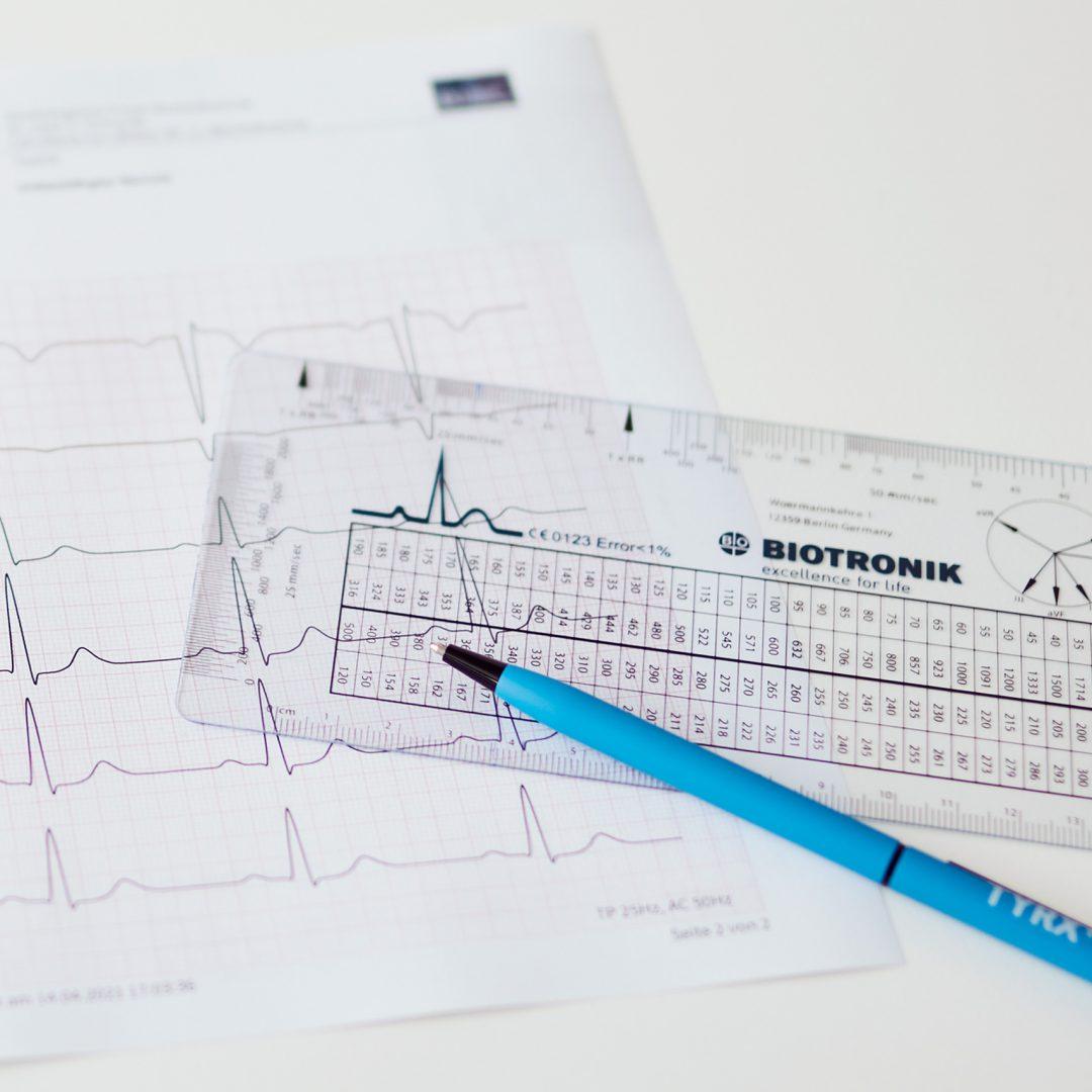 Stilleben mit einem Diagnosegerät für Herzschrittmacher, einem Stift und einem ausgedrucktes Kardiogramm.